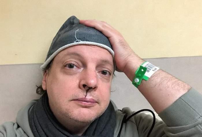 """Il comico Dado picchiato dal fidanzato della figlia: """"Ho ricevuto minacce seguite da un'aggressione"""""""