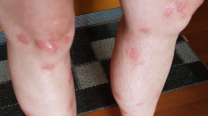 """Risolto il caso """"bubboni"""": li provoca una zanzara"""
